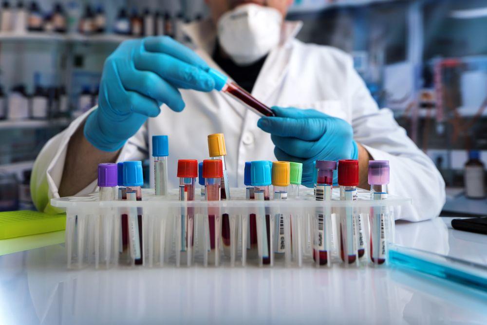 Что проверяют наркологи в моче, крови, волосах